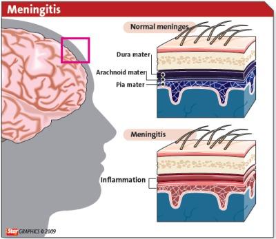 brain tissue layers - photo #39