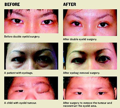 Archives | The Star Online. Bad Double Eyelid Surgery